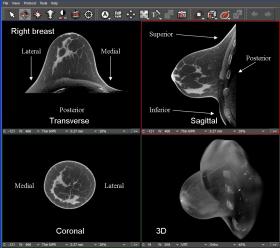 KONING INTRODUCE SISTEMUL CT BREAST 3D  - Bimedis - 1