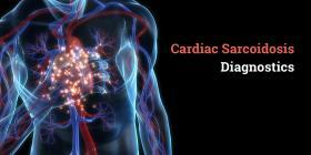 O METODă NOUă DE VIZUALIZARE PET/CT AMELIOREAZă DIAGNOSTICA SARCOIDOZEI CARDIALE - Bimedis - 1