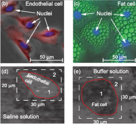 3D IMAGING OF CELLS USING SOUND WITHOUT HARMING CELL - Bimedis - 1